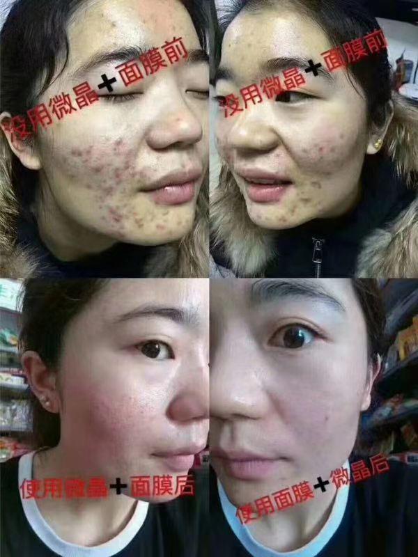 嗨团新版微晶焕活清肌精华17.jpg
