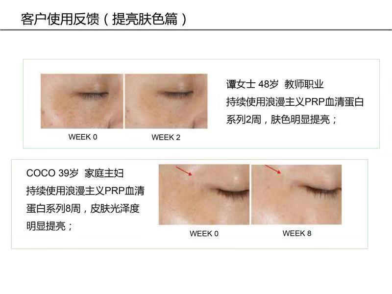 嗨团浪漫主义脐带血精华89.jpg