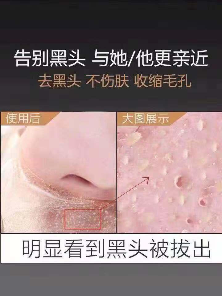 嗨团化妆品A类店唯一指定去黑头产产品58.jpg